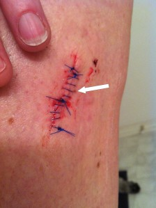 Stitches 30 hours after surgery